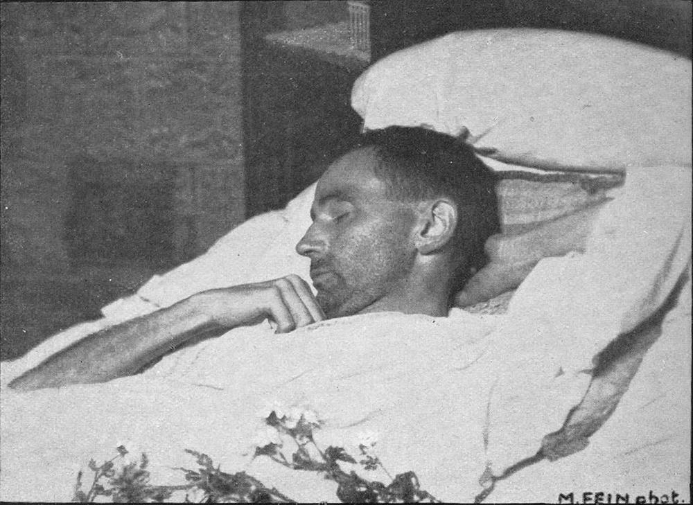 Egon Schiele on His Deathbed, 1918. Photograph by Martha Fein.