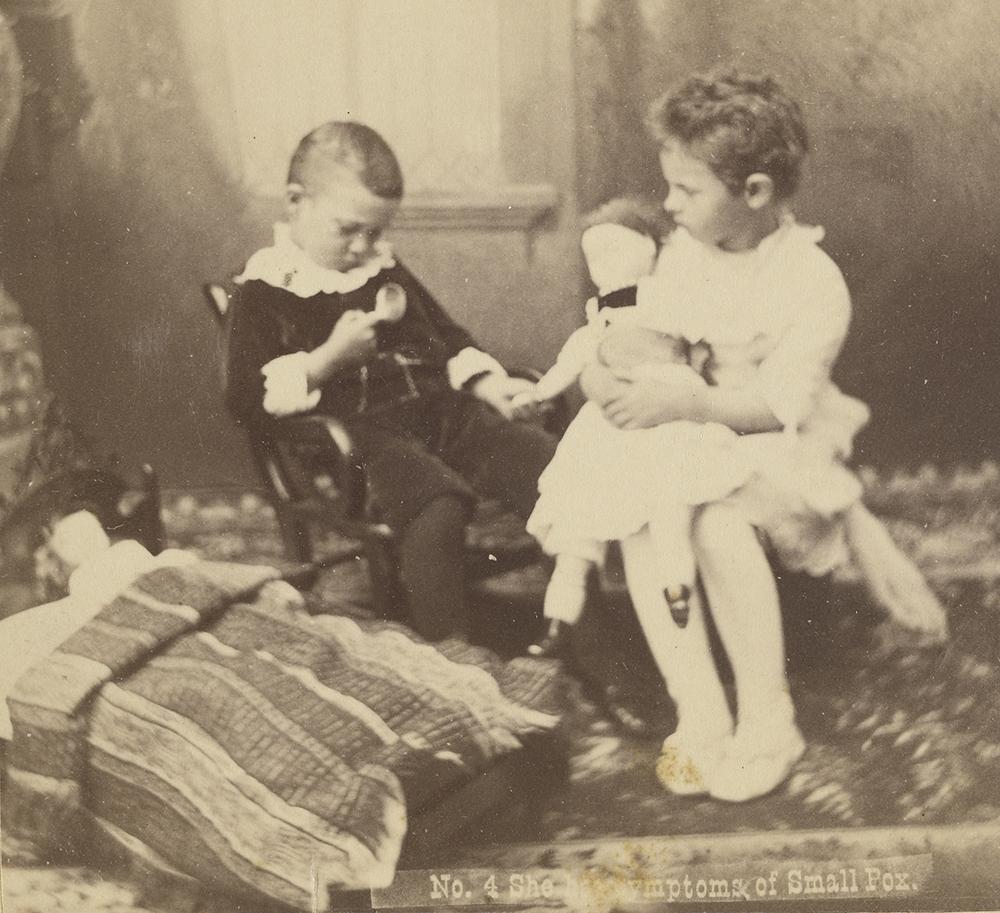 She Has Symptoms of Smallpox, United States, c. 1870