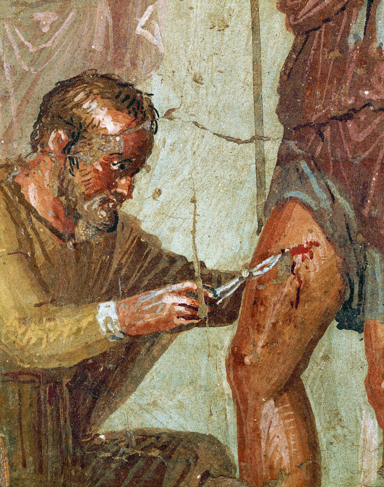 The physician Iapyx tries to remove an arrowhead from the thigh of Aeneas, fresco from the Casa di Sirico, Pompeii, first century. Naples National Archaeological Museum, Naples, Italy.