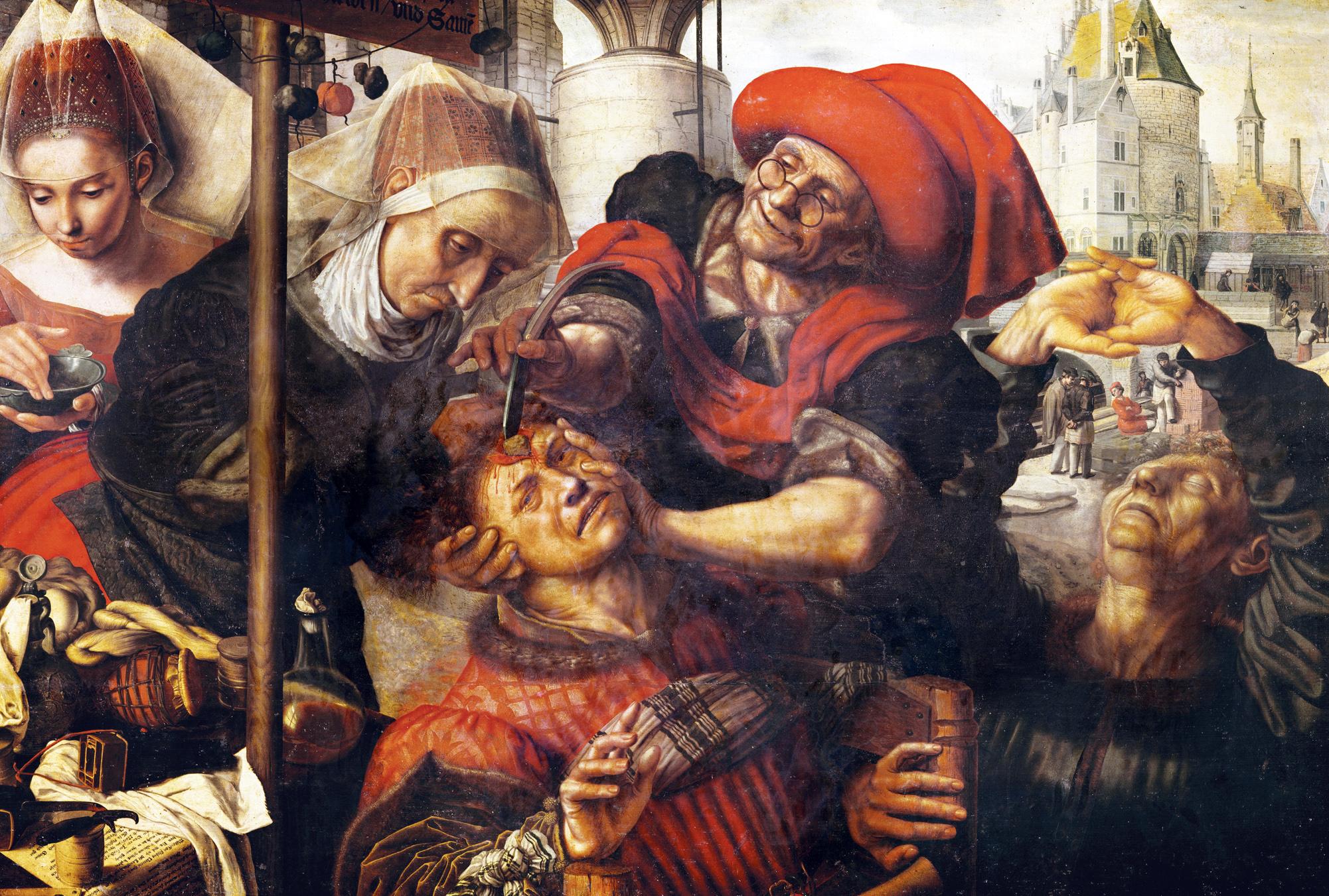 The Surgeon, or Cure of Folly, by Jan Sanders van Hemessen, c. 1555. Prado Museum, Madrid, Spain.