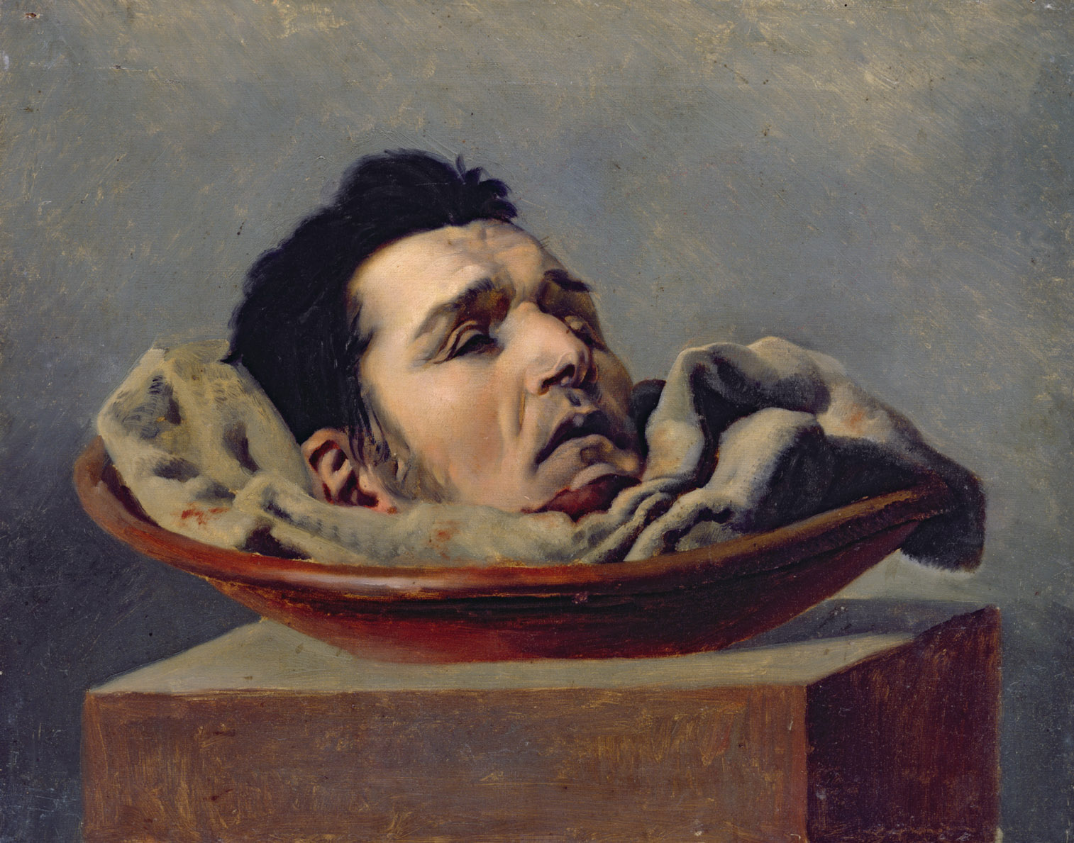 Guillotined Head of a Parricide Executed at Puy in 1825, by François Gabriel de Becdelièvre, c. 1825.