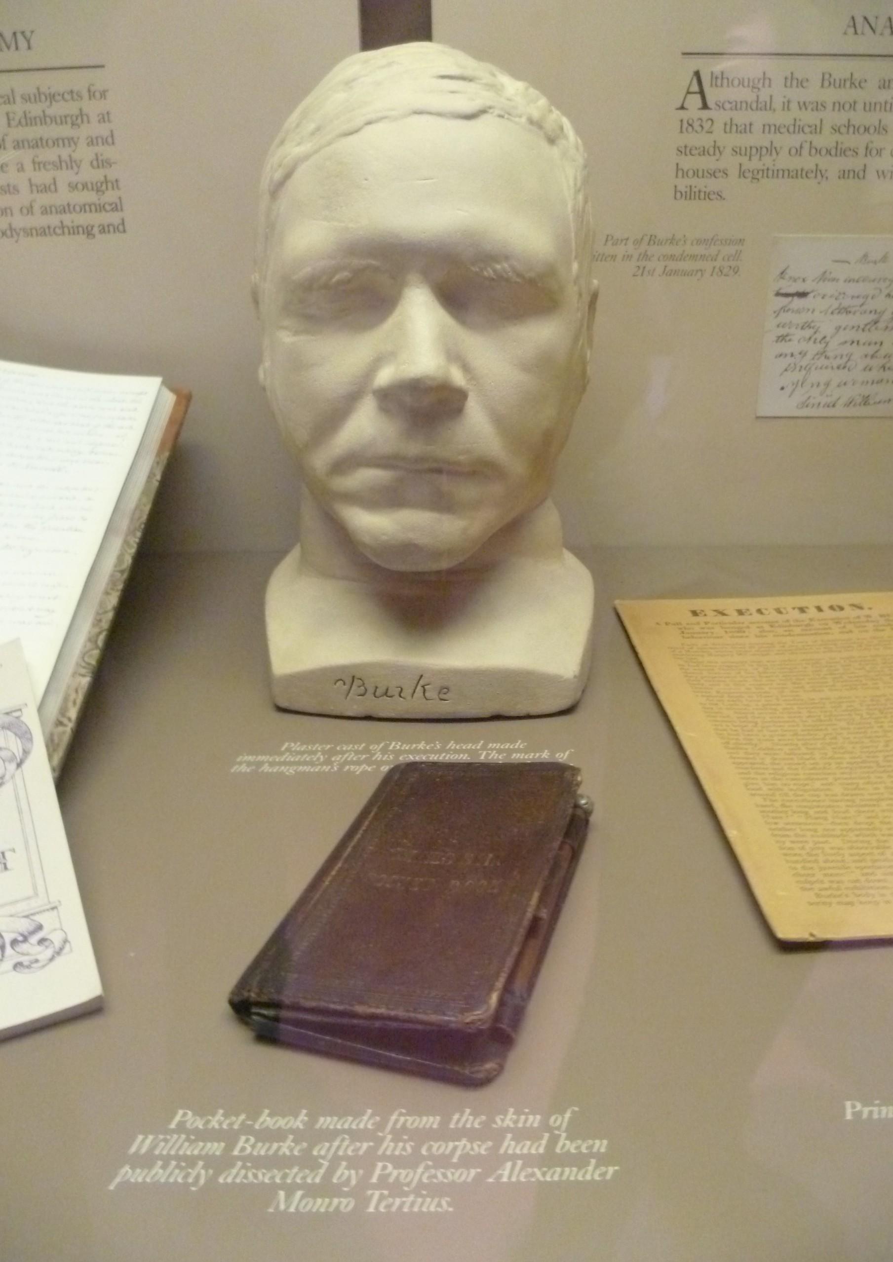 William Burke's death mask and pocket book, Surgeons' Hall Museum, Edinburgh.